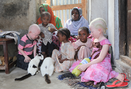 International Albinism Awareness Day